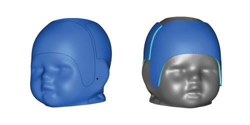 Cranial Remolding Helmet Design Course