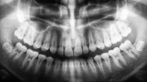BP - Radiology