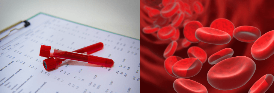 Hematology Made Easy - Online Review Course and Lectures