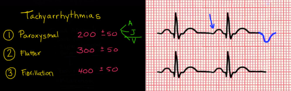 ECG Interpretation Illustrations Examples