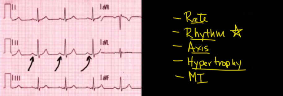 System for Reading an ECG and P waves