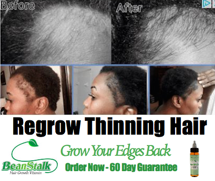 How to Repair Thinning Hair Edges
