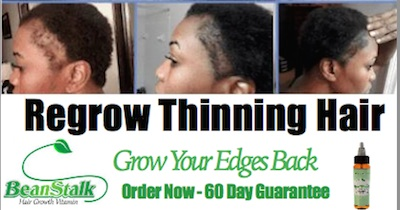 How to Grow My Thinning Edges