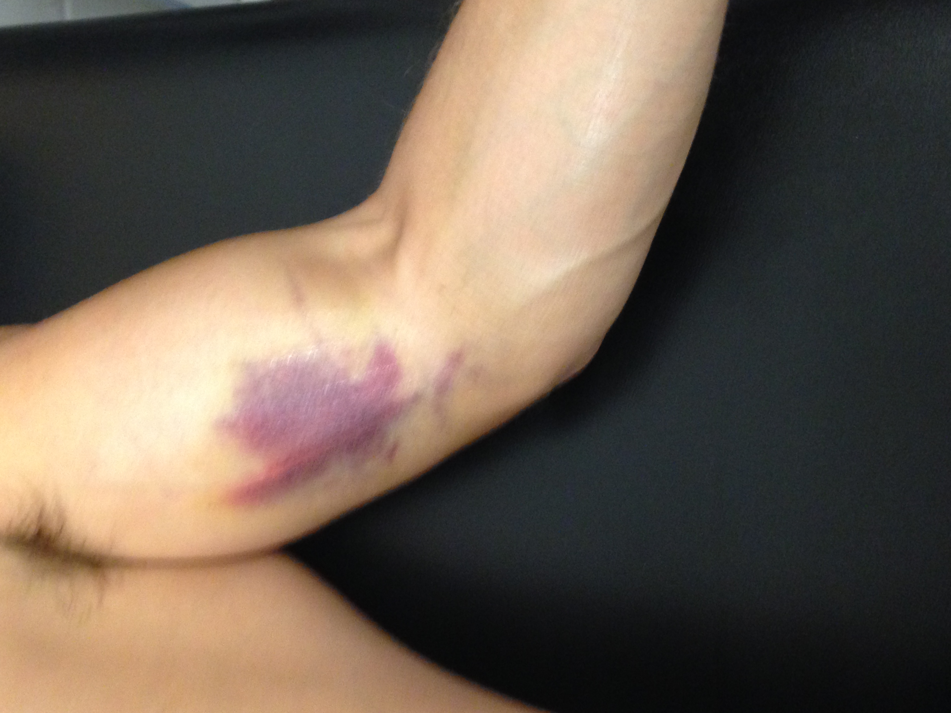 Musculoskeletal Injuries in Sport   Top Hat