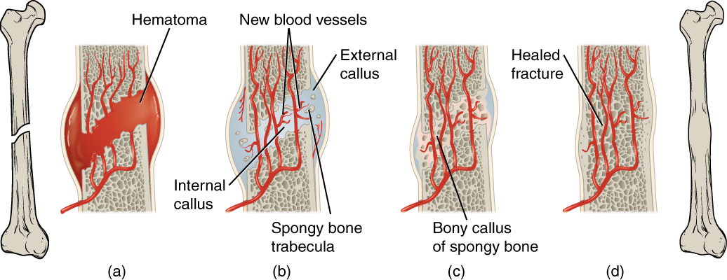 figure 6 21 stages in fracture repair the healing of a bone fracture  follows a series of progressive steps: (a) a fracture hematoma forms