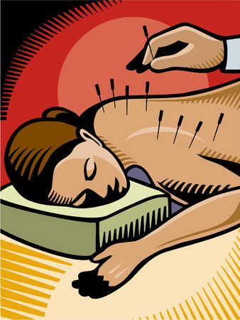 Stock Illustration - acupuncture carried out on a woman