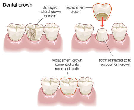 The stages in constructing a dental crown