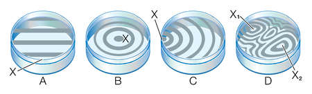 Interference patterns formed by test surfaces A: flat surface, B & C: convex surface, D: irregular surface, 2 contact points
