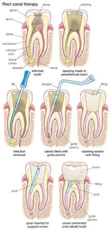 The stages in root canal therapy