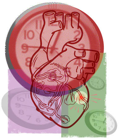 Clocks and human heart with clot in vein