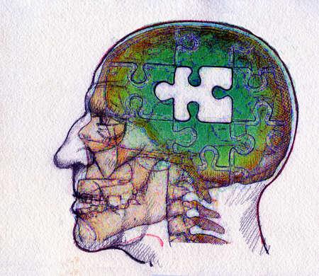 Missing jigsaw piece in man's brain