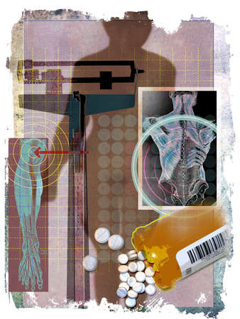 Silhouette of obese female figure with scale, prescription bottle, pills, knee, back diagrams and rough edges.