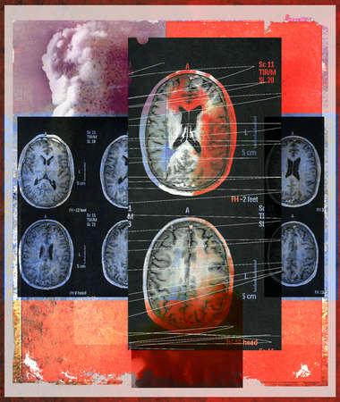 Cranial CT Scan