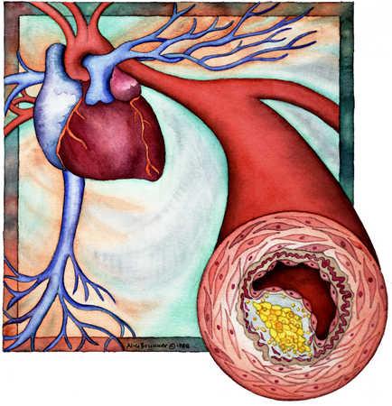 Cross Section Of Artery