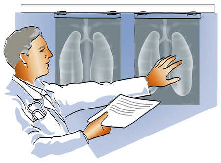 Doctor Looking At X-Rays Of Lungs