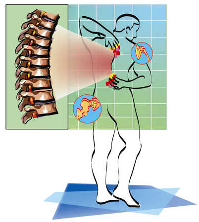 Patient With Back Pain