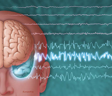 Illustration of a brain showing epileptic seizure activity, front view. Electroencephalogram (EEG) tracings show abnormal waveforms emanating from the temporal lobe (blue-green) of the brain.