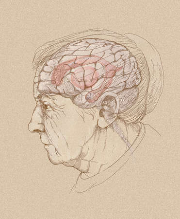 Illustration of Alzheimer's disease, showing the aging brain in an elderly woman. Highlighted are the limbic system, basal ganglia, and cingulate gyrus, the brain structures significantly affected by the disease.