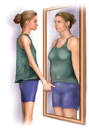 Medical illustration of anorexia nervosa, showing a malnourished patient looking into a mirror that reflects her image of herself as an overweight individual.