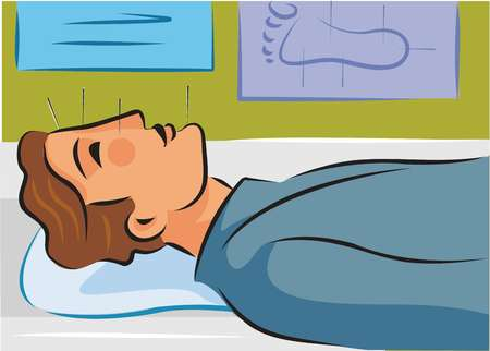 Illustration of a man receiving acupuncture on his face