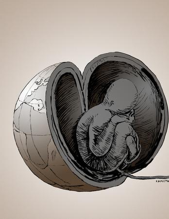 Fetus in global womb
