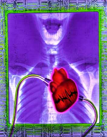 X-Ray With Heart
