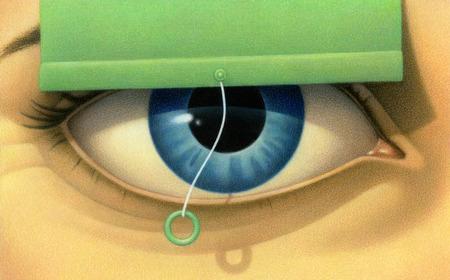 Raised blind above woman's eye