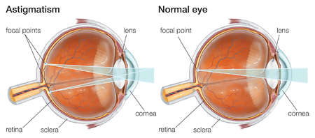 Astigmatism results from a nonuniform curvature of the cornea that produces distorted vision.