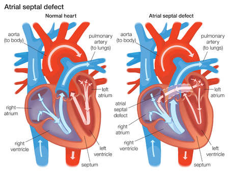 Stock illustration diagram demonstrating the difference between a diagram demonstrating the difference between a normal heart and a heart with an atrial septal defect ccuart Choice Image
