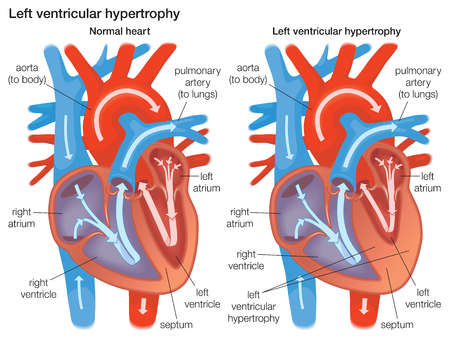 Cross section comparing the left ventricular wall of normal heart to a left ventricular wall that has experienced hypertrophy.