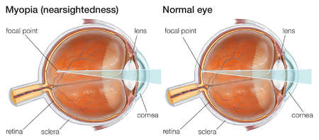 Myopia, or nearsightedness, can be corrected with concave lenses to allow near objects to be brought into focus by the eye.