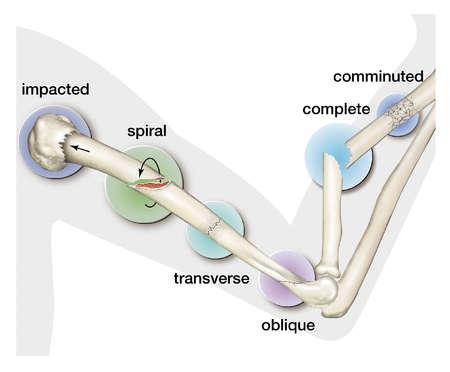 Stock Illustration - Types of fractures of bones.