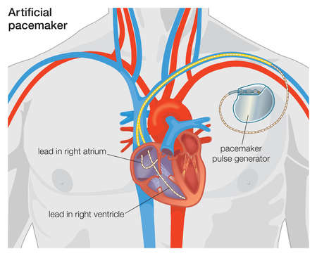 Diagram of an artificial pacemaker