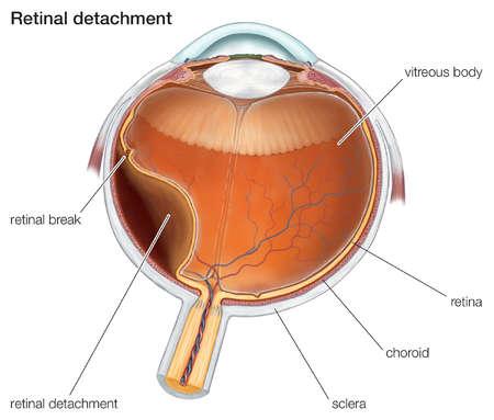 Diagram of a retinal detachment.