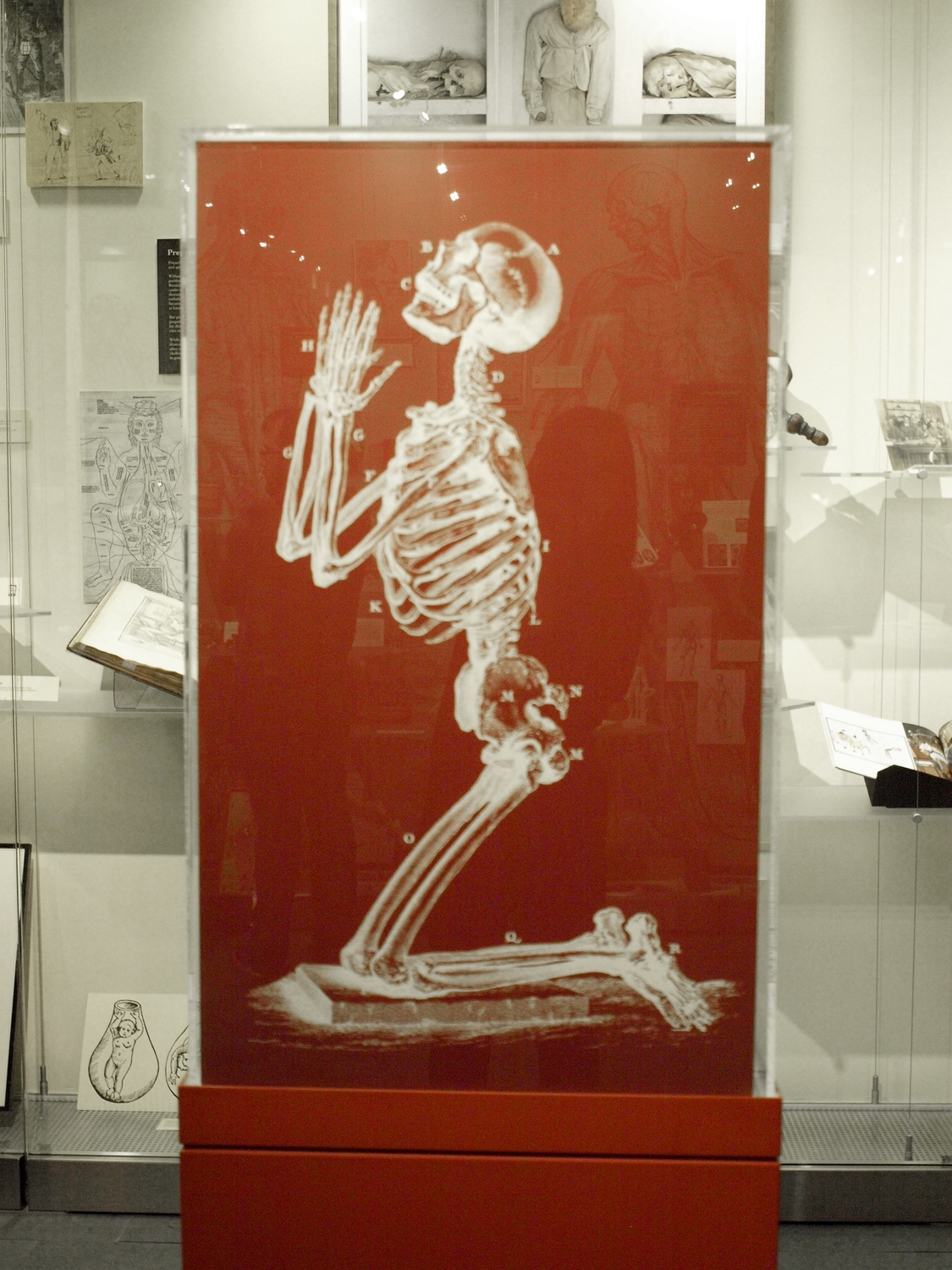 New Exhibit Explores History and Science of Human Dissection | News ...
