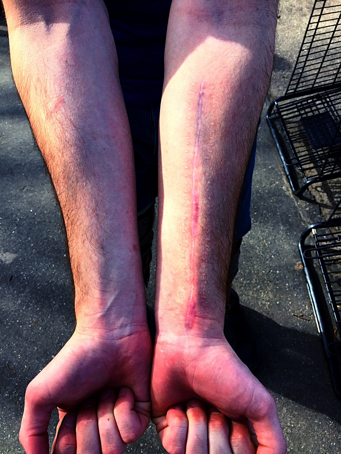 """BBP member Jacques Chouinard displays battle scars from the time he """"broke the shit out of my arm"""" playing bike polo."""