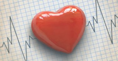 cardiovascular-technologist