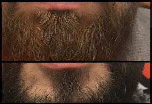 La Ley Beards