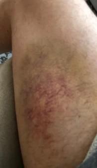 Pitching Bruise