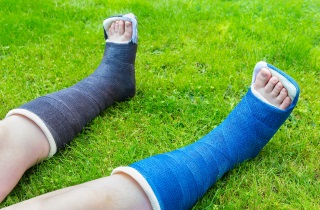 Child's broken legs