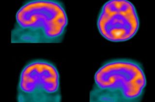 SPECT images of brain