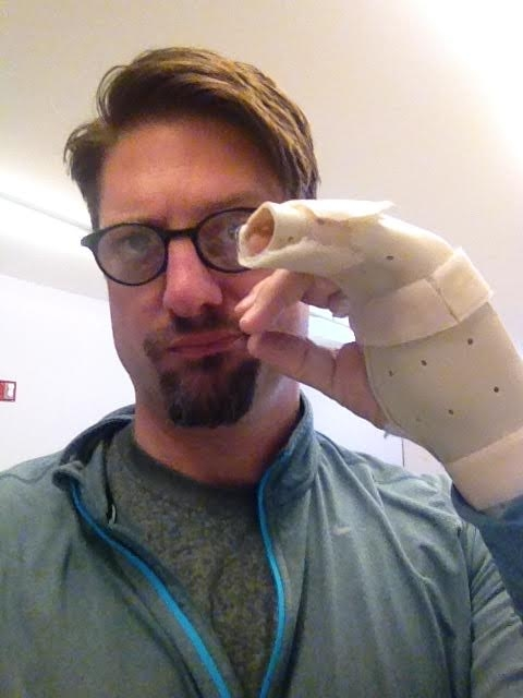 Christopher Sieber shows off the injury he sustained getting ready to play Miss Trunchbull on Broadway in Matilda the Musical.