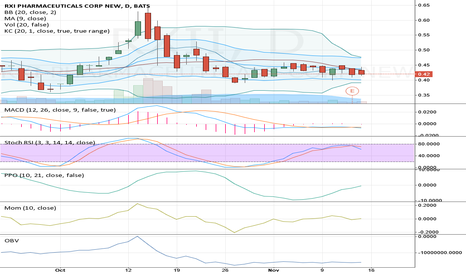 RXII: This thing is super consolidated.. Up or down?