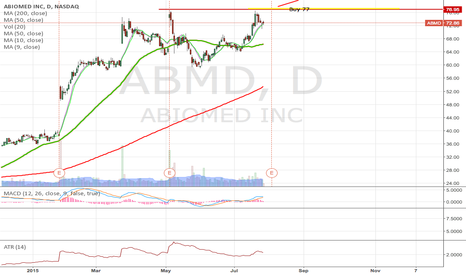 ABMD: ABMD on Breakout
