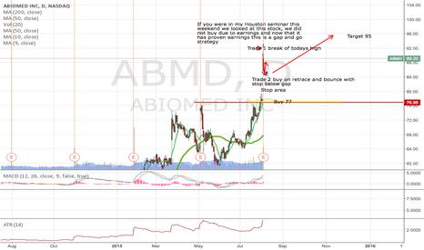 ABMD: ABMD Gap