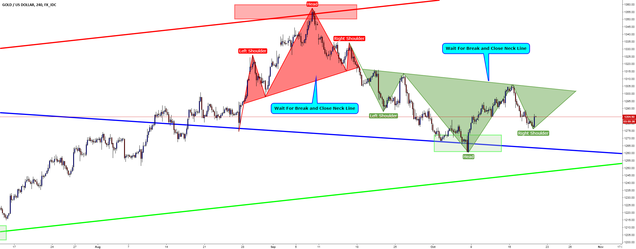 XAUUSD / H4 / Head and Shoulders