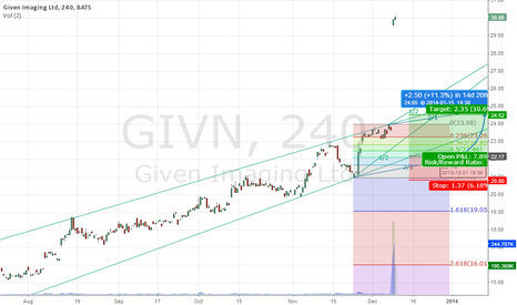 GIVN: Given Imaging Ltd