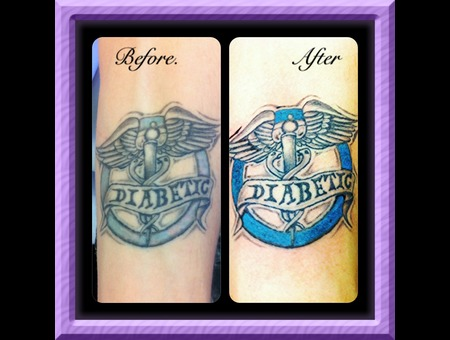 Diabetic Warning Tattoo  Retouch Original Studio Had No Time   Color