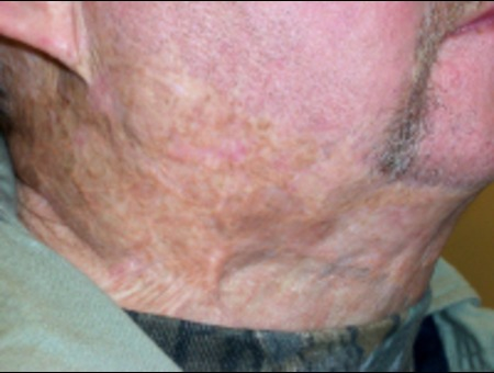 Healed After Treatment Head