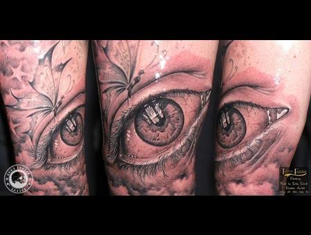 Eye Arm